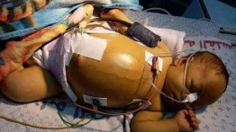 Seorang bayi dari Gaza meninggal setelah ditolak berobat di Ramallah