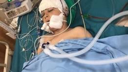 Ditembak pasukan Israel, 100 pecahan peluru bersarang di kepala seoarang bocah Palestina di Tepi Barat