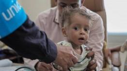 UNICEF: Setiap 10 menit, 1 anak Yaman meninggal dunia akibat krisis
