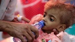 """Kelaparan akut"" menewaskan 85,000 anak di Yaman"