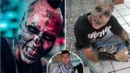 Setelah ibu meninggal, Pemuda Kolombia potong hidung dan telinga